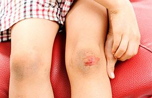 Рубцы после ссадин и ран, наскар